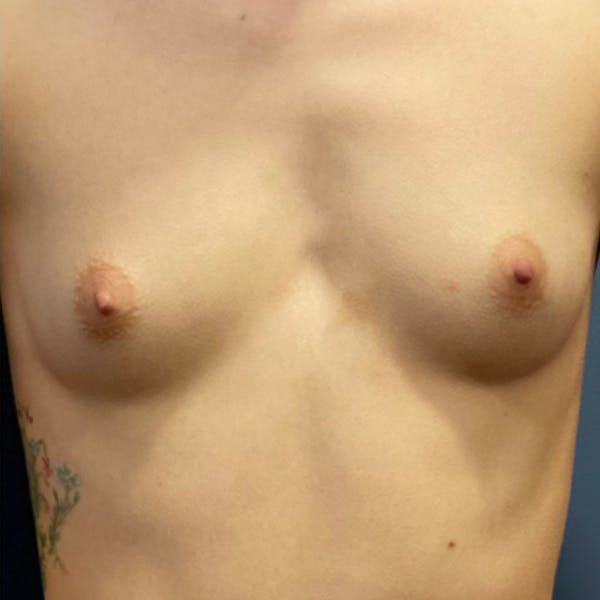 Breast Augmentation Gallery - Patient 57582661 - Image 1
