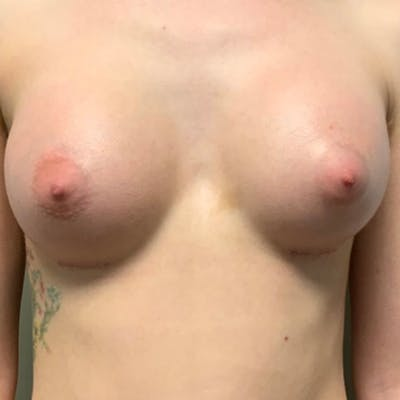 Breast Augmentation Gallery - Patient 57582661 - Image 2
