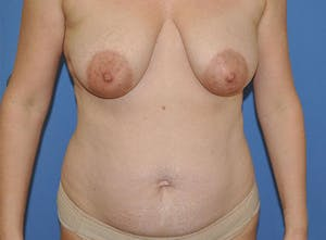 Newport Beach Breast Lift Patient Before & After Photo