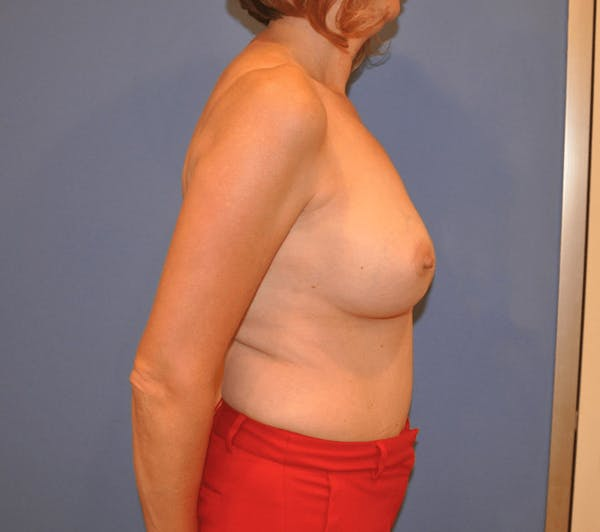 Breast Reconstruction Gallery - Patient 13574538 - Image 1
