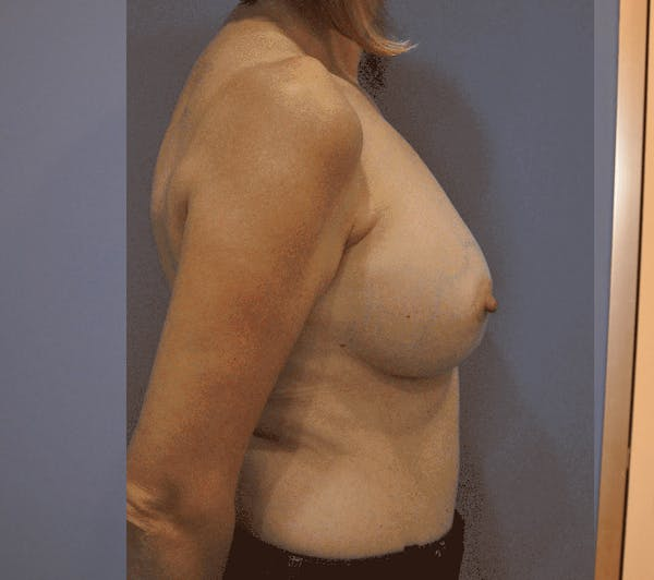 Breast Reconstruction Gallery - Patient 13574538 - Image 2