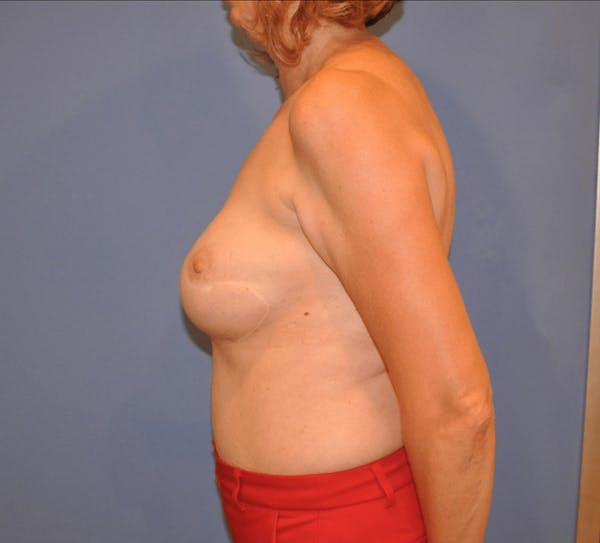 Breast Reconstruction Gallery - Patient 13574538 - Image 3