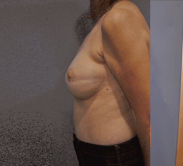 Breast Reconstruction Gallery - Patient 13574538 - Image 4