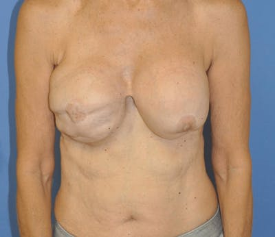 Breast Reconstruction Gallery - Patient 13574542 - Image 1