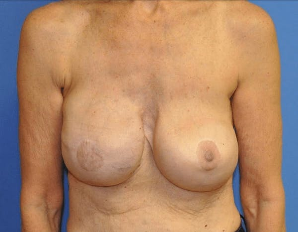 Breast Reconstruction Gallery - Patient 13574542 - Image 2