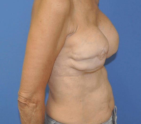 Breast Reconstruction Gallery - Patient 13574542 - Image 3
