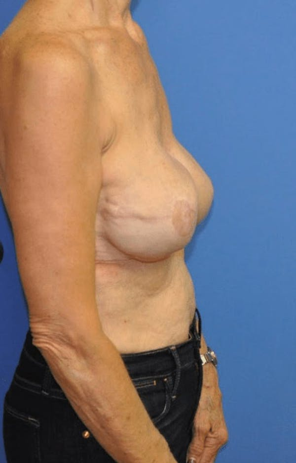 Breast Reconstruction Gallery - Patient 13574542 - Image 4