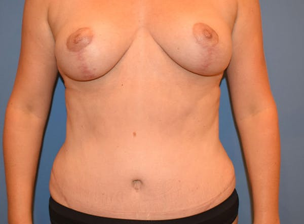 Breast Lift Gallery - Patient 13574547 - Image 2