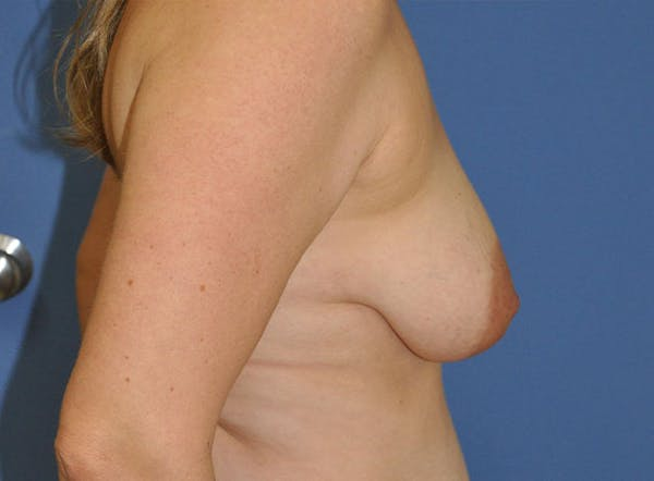 Breast Lift Gallery - Patient 13574547 - Image 3