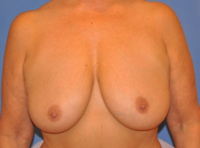 Breast Lift Gallery - Patient 13574549 - Image 1