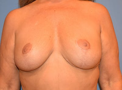 Breast Lift Gallery - Patient 13574549 - Image 2