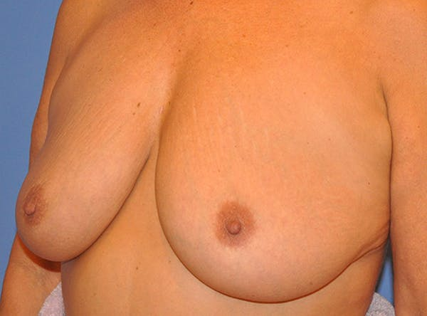 Breast Lift Gallery - Patient 13574549 - Image 3