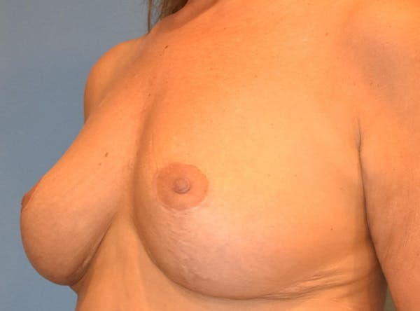 Breast Lift Gallery - Patient 13574549 - Image 4
