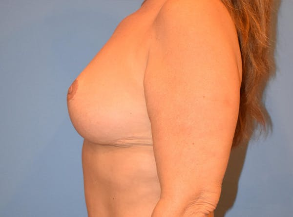 Breast Lift Gallery - Patient 13574549 - Image 5