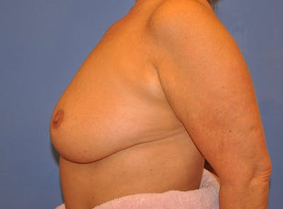 Breast Lift Gallery - Patient 13574549 - Image 6
