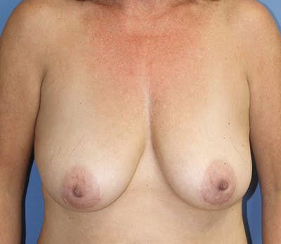 Breast Lift Gallery - Patient 13574559 - Image 1