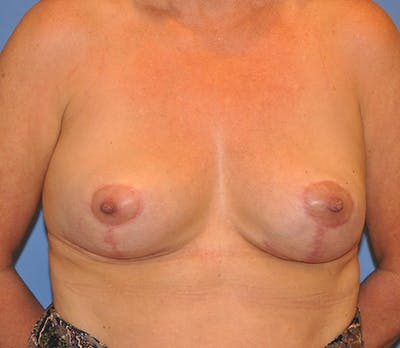 Breast Lift Gallery - Patient 13574559 - Image 2