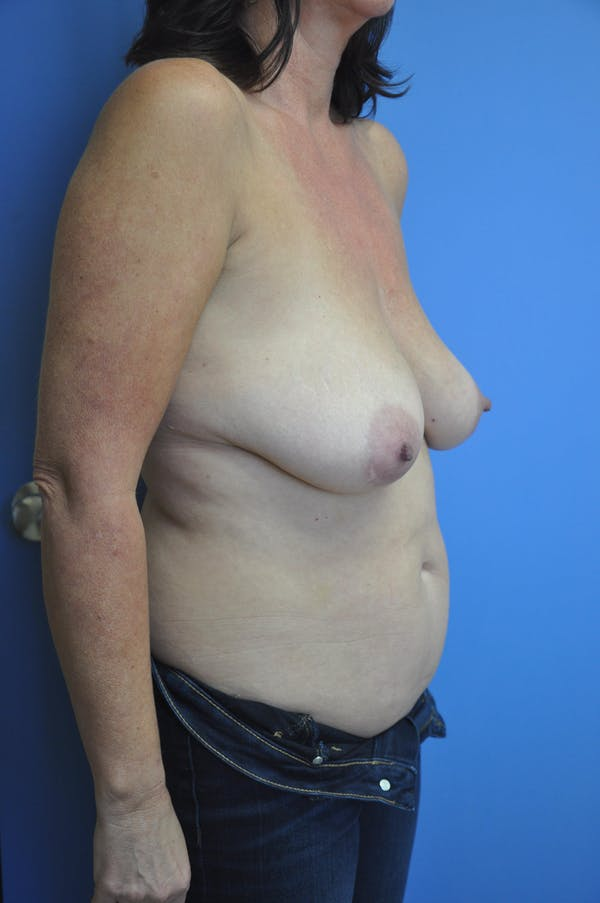 Breast Lift Gallery - Patient 13574559 - Image 3