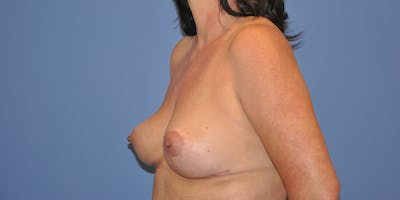 Breast Lift Gallery - Patient 13574559 - Image 4