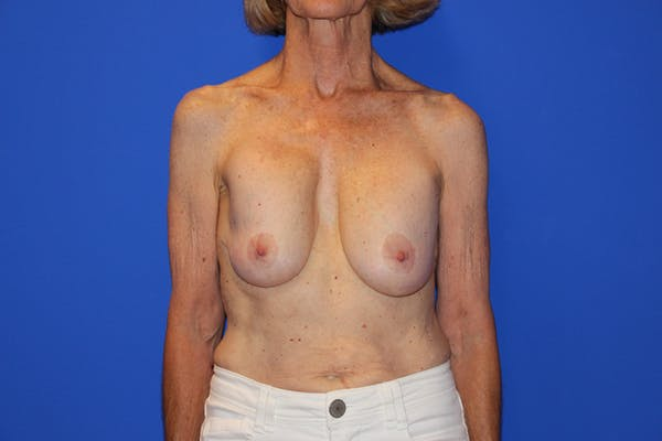 Breast Lift Gallery - Patient 13574560 - Image 1