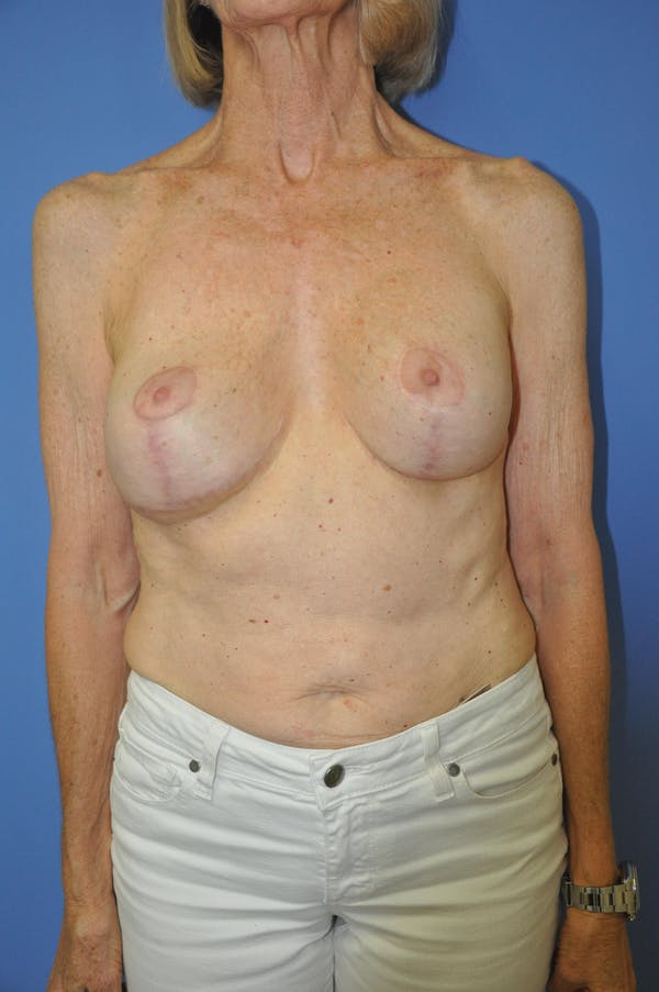 Breast Lift Gallery - Patient 13574560 - Image 2