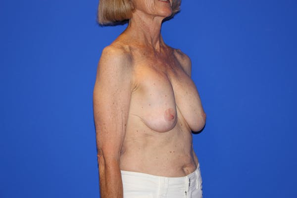 Breast Lift Gallery - Patient 13574560 - Image 3