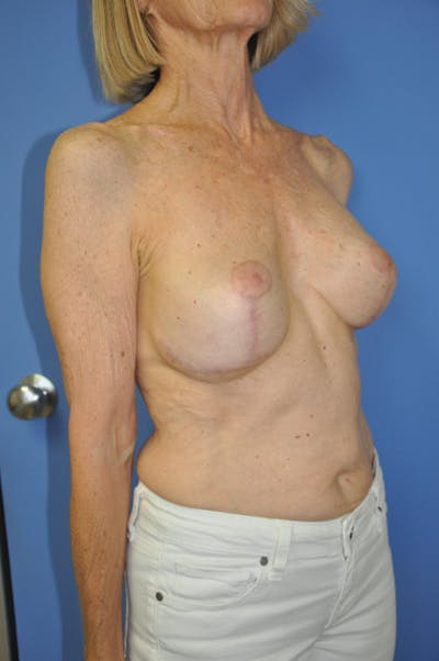 Breast Lift Gallery - Patient 13574560 - Image 4