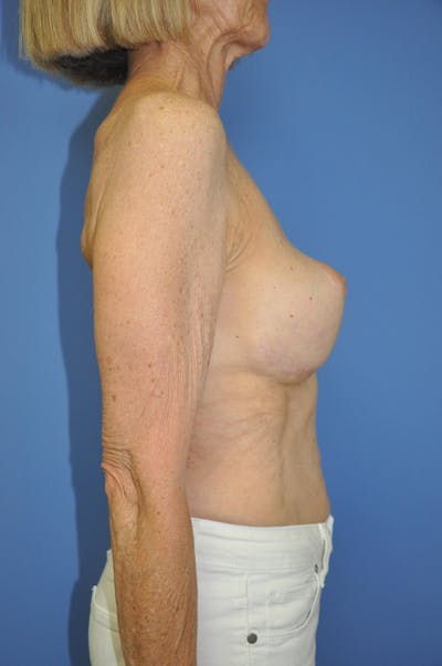Breast Lift Gallery - Patient 13574560 - Image 6