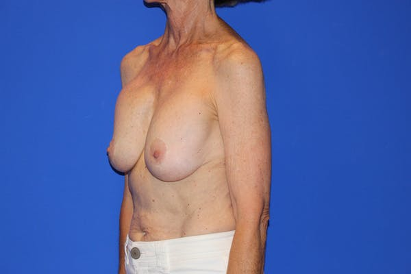 Breast Lift Gallery - Patient 13574560 - Image 7