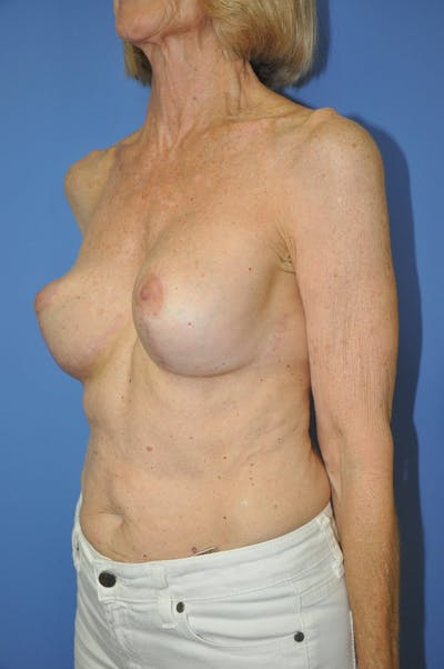 Breast Lift Gallery - Patient 13574560 - Image 8