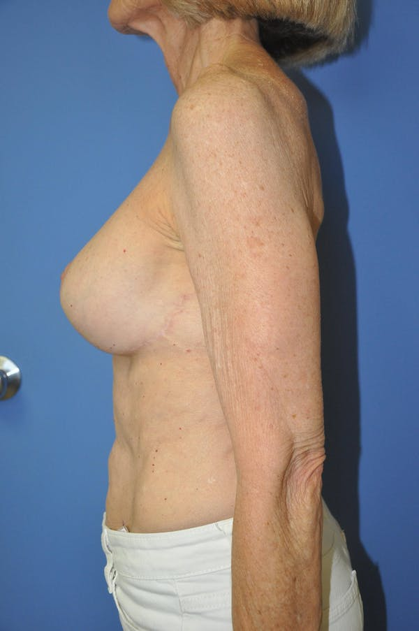 Breast Lift Gallery - Patient 13574560 - Image 10