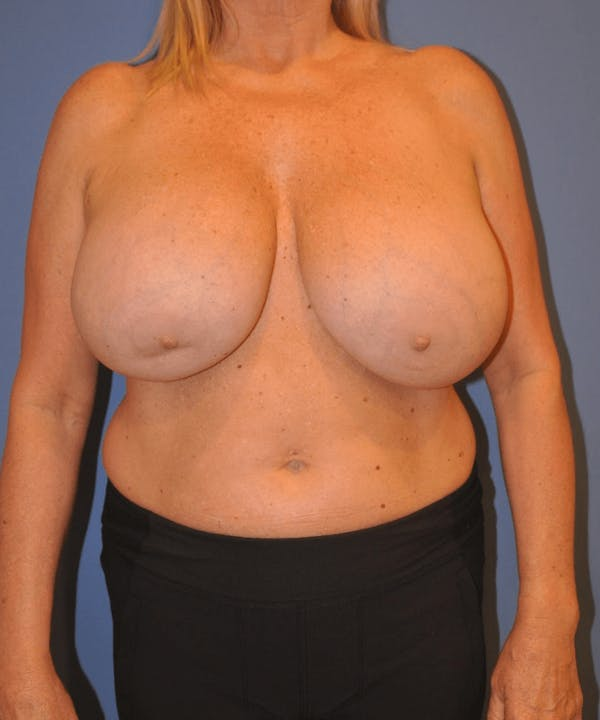 Breast Lift Gallery - Patient 13574561 - Image 1