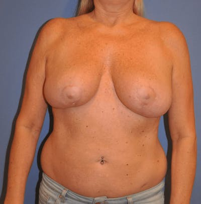 Breast Lift Gallery - Patient 13574561 - Image 2