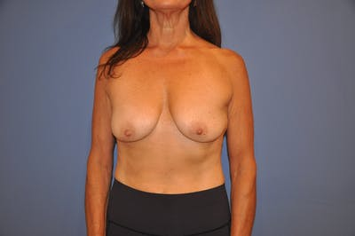 Breast Lift Gallery - Patient 13574562 - Image 1