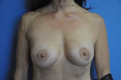 Breast Lift Gallery - Patient 13574562 - Image 2