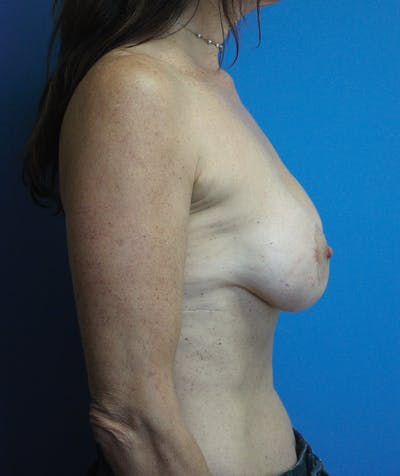 Breast Lift Gallery - Patient 13574562 - Image 4