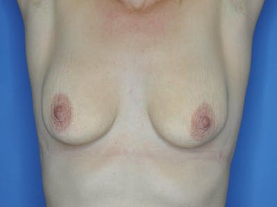 Breast Lift Gallery - Patient 13574564 - Image 1