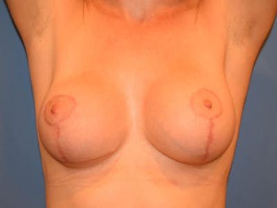 Breast Lift Gallery - Patient 13574564 - Image 2
