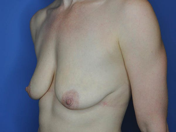 Breast Lift Gallery - Patient 13574564 - Image 3