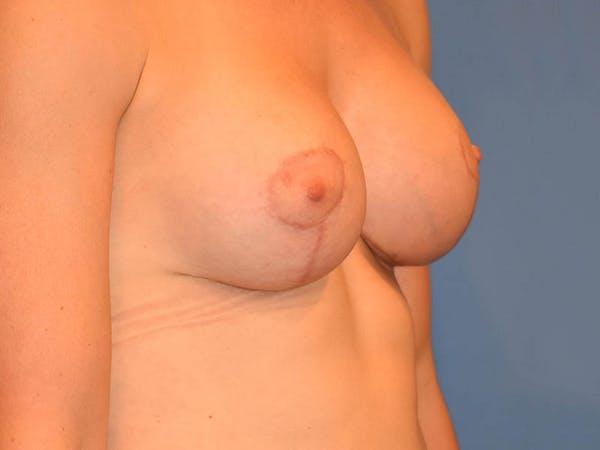 Breast Lift Gallery - Patient 13574564 - Image 6