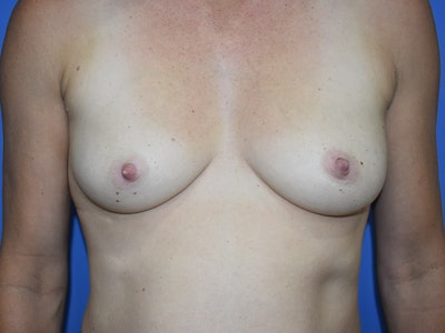 Breast Augmentation Gallery - Patient 13574566 - Image 1