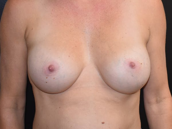Breast Augmentation Gallery - Patient 13574566 - Image 2