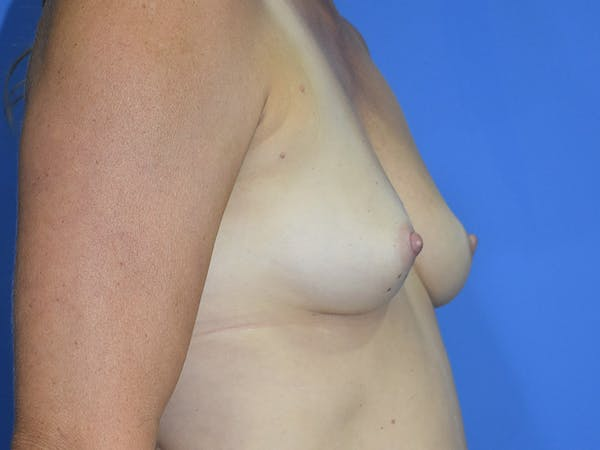 Breast Augmentation Gallery - Patient 13574566 - Image 3