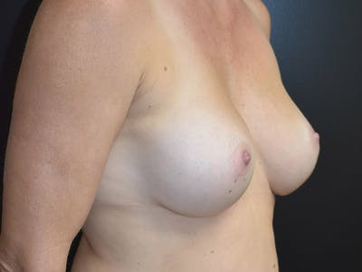 Breast Augmentation Gallery - Patient 13574566 - Image 4