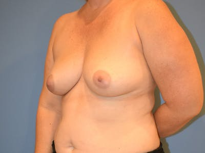 Breast Augmentation Gallery - Patient 13574569 - Image 1