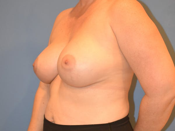 Breast Augmentation Gallery - Patient 13574569 - Image 2