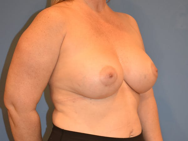 Breast Augmentation Gallery - Patient 13574569 - Image 4