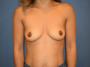 Before and After Breast Augmentation in Newport Beach