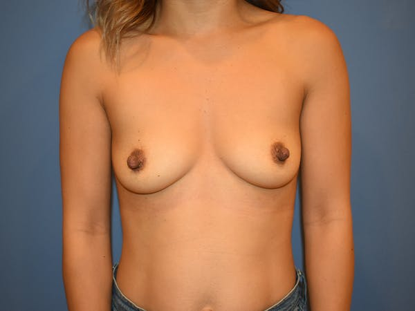 Breast Augmentation Gallery - Patient 13574570 - Image 1