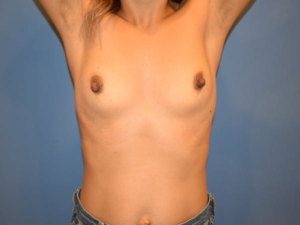 Breast Augmentation Gallery - Patient 13574570 - Image 3